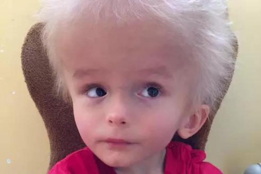 Мать бросила ребенка из-за размера головы, спустя 4 года он удивил
