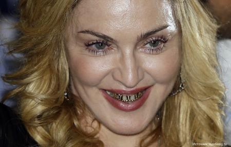 Неголливудская улыбка: звезды с ужасными зубами
