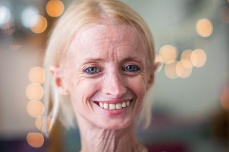 История девушки, которая стареет в 8 раз быстрее ровесниц